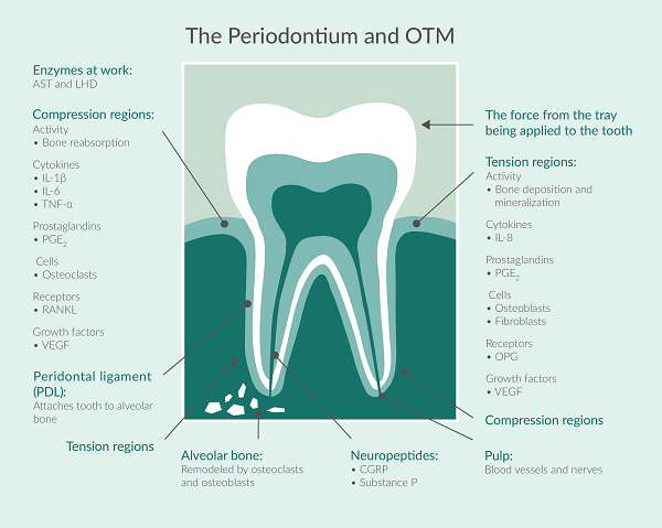 This graphic illustrates the various biomolecules and cells that are involved in orthodontic tooth movement.
