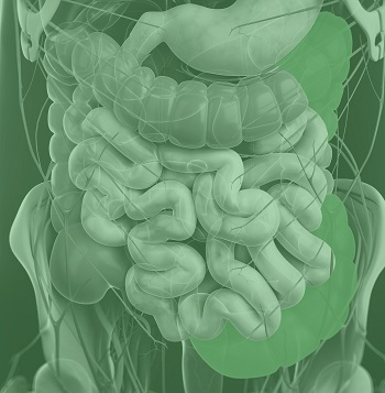 An illustration showing the areas of the gut affected by Colitis.