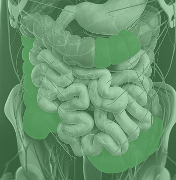 This illustration shows the areas of the gut affected by Crohn's Disease.