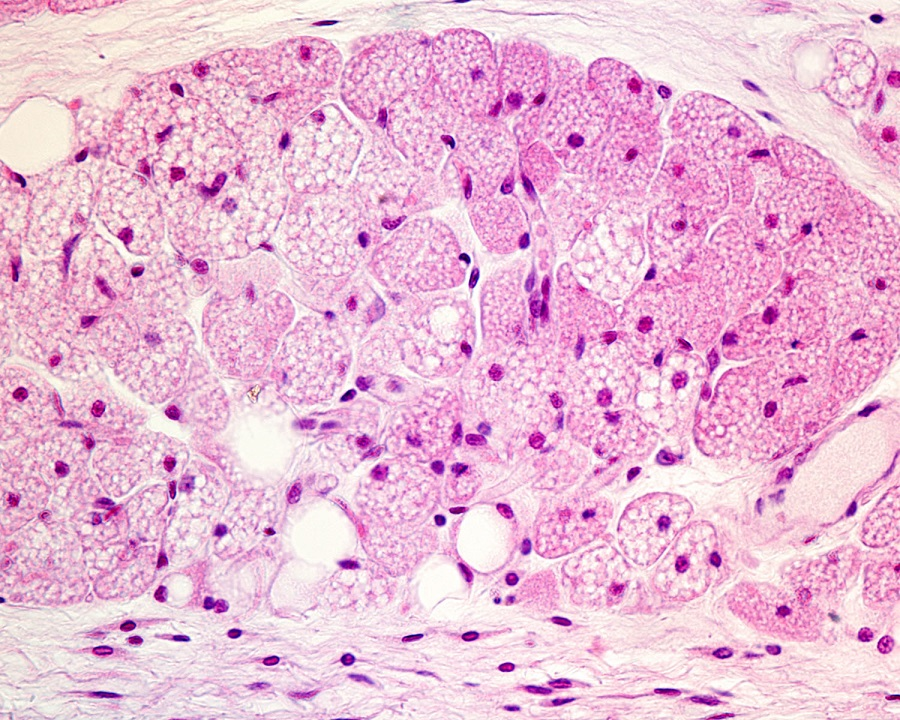 This is a closeup image of brown adipose tissue.