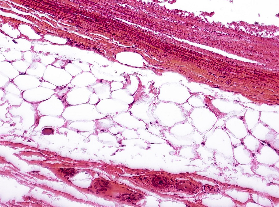This is a closeup image of white adipose tissue.