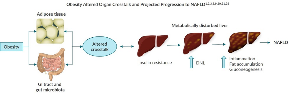 This diagram outlines the altered organ crosstalk and projected progression from obesity to NAFLD.